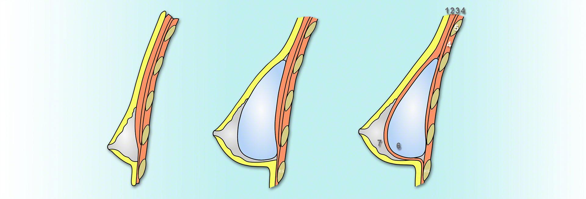 Brustimplantate unter dem Brustmuskel